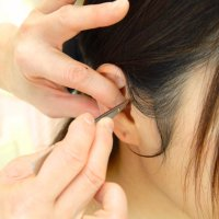 耳つぼ施術1回チケット