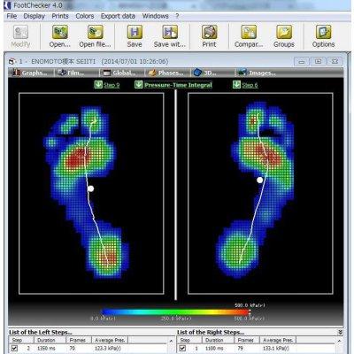 歩行足圧測定会 足に痛みを感じる。足の形が気になる。角質がある。などのお悩みはありませんか? 「歩...