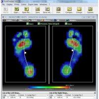 歩行足圧測定会 足に痛みを感じる。足の形が気になる。角質がある。など...