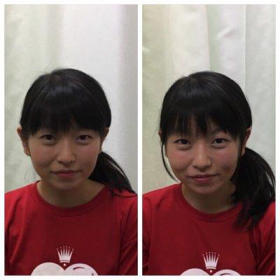 【店頭決済専用】初回限定 初診料込み「美容鍼+小顔整体+姿勢整体コース」チケットのイメージその2