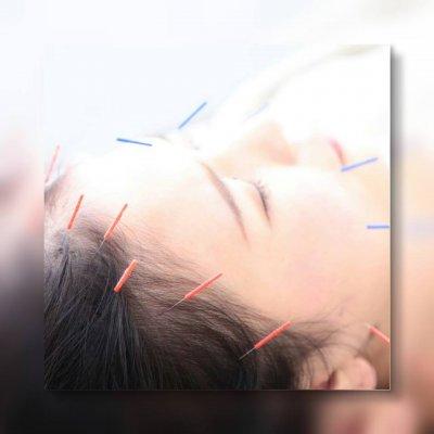 美容鍼灸 トライアルコース 約90分(お身体の治療もふくまれます)