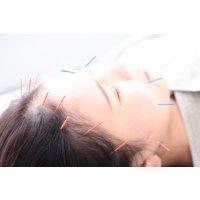 鍼灸治療 初診料